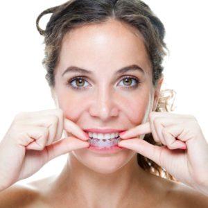 woman using clear braces